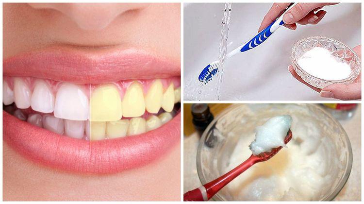 Resultado de imagen para Un amigo dentista me enseñó como eliminar el sarro y blanquear mis dientes en casa